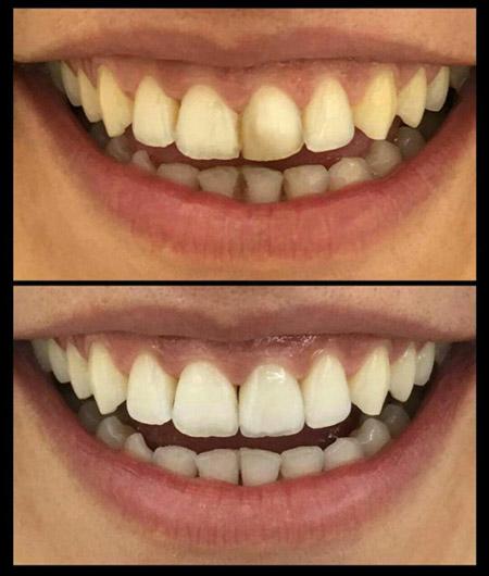تاثیر بلیچینگ بر روی دندان