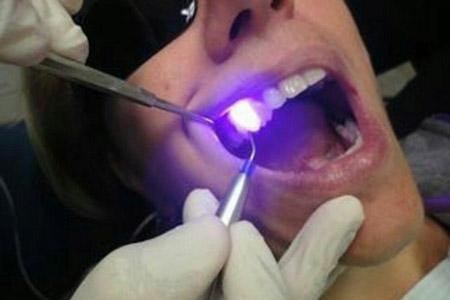 بلیچینگ دندان در مطلب