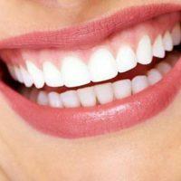 بلیچینگ دندان (سفید کردن دندان) | عوارض و تاثیر بلیچینگ دندان