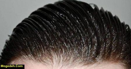 ایا چربی مو باعث ریزش میشود