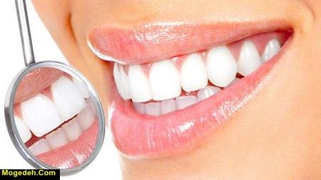 بهترین سفید کننده دندان