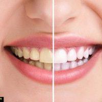 سفید کننده طبیعی دندان ها در خانه با انواع ماسک
