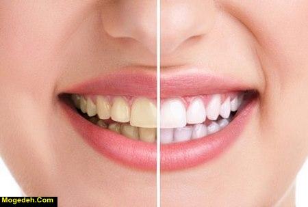 چگونه دندانهای سفید و براق داشته باشیم