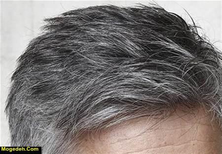 درمان سفیدی مو در طب سنتی