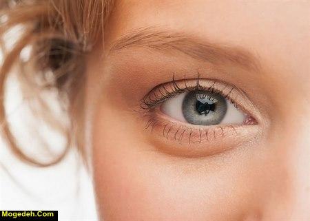 علت نازک شدن پوست زیر چشم