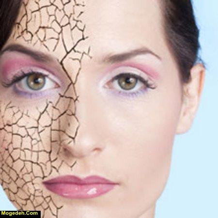 درمان قطعی ترک های پوستی