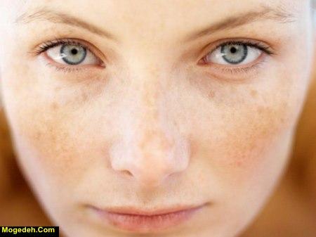 درمان لکه های قهوه ای صورت