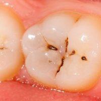 برای جلوگیری از پوسیدگی دندان چه کنیم