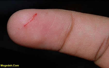علت بند نیامدن خون زخم