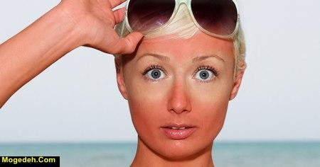 درمان افتاب سوختگی چشم
