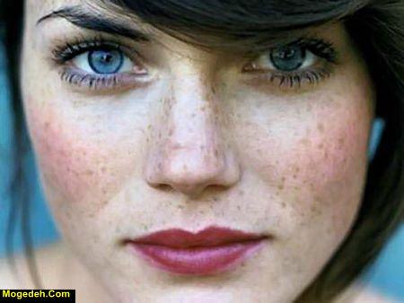 از بین بردن کک و مک صورت با لیزر