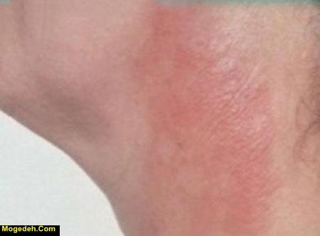 درمان عرق سوز شدن واژن