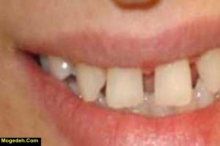 علت فاصله افتادن بین دندانهای جلو