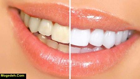 بهترین خمیر دندان سفید کننده