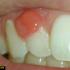 درمان عفونت دندان با استفاده از این معجون معجزه گر