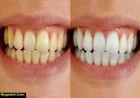 سفید کردن دندان با جوش شیرین و لیمو