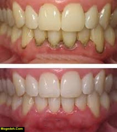 وارد شدن عفونت دندان به خون