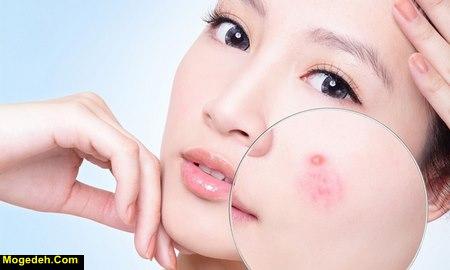 درمان خارش عصبی پوست