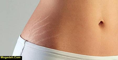 جلوگیری از ترک پوست در بارداری