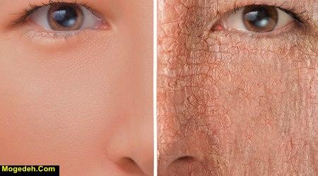 تحقیق در مورد سلامت پوست