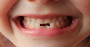 علائم و نشانه های دندان درآوردن نوزاد