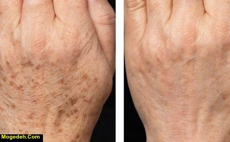 لکه های قهوه ای قارچی روی پوست بدن
