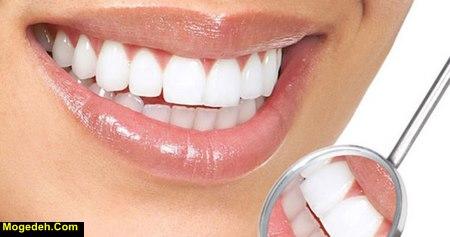 نکاتی برای سفیدی دندان