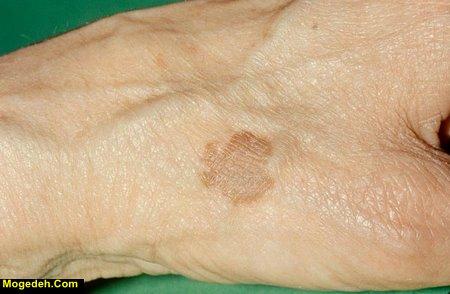لکه های قهوه ای قارچی روی پوست