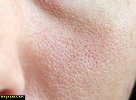 درمان منافذ باز پوست در طب سنتی