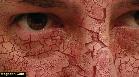 درمان خشکی پوست صورت با طب سنتی