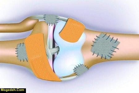 علائم کمبود کلسیم در دوران شیردهی