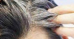 سفید شدن موهای ناحیه تناسلی