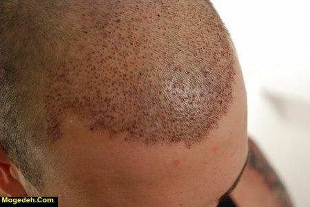 نکات قبل از کاشت مو