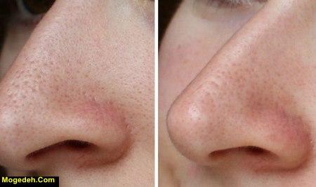 بستن منافذ پوست با لیزر