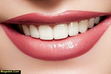 راز سفیدی دندان بازیگران