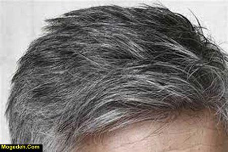 قرص جلوگیری از سفید شدن مو