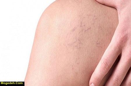 گرفتگی عضلات پا در طب سنتی