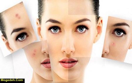 Photo of عوارض استرس بر زیبایی | تاثیرات مخرب استرس بر زیبایی صورت