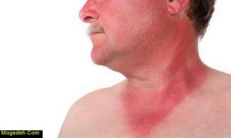 درمان آفتاب سوختگی دریا