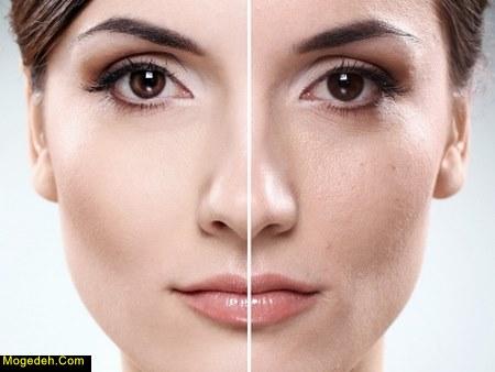 سوختگی صورت با لایه بردار