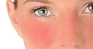 درمان آفتاب سوختگی استخر