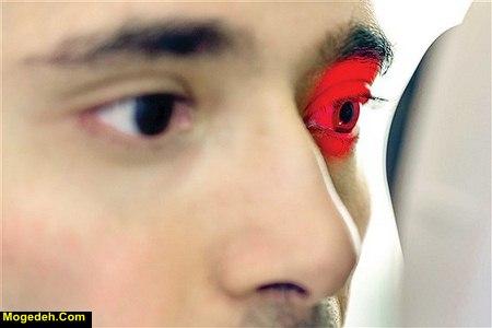 درمان ضعیفی چشم با ورزش